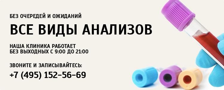 Анализ мочи Новые Черемушки Справка флюорографии Семеновская